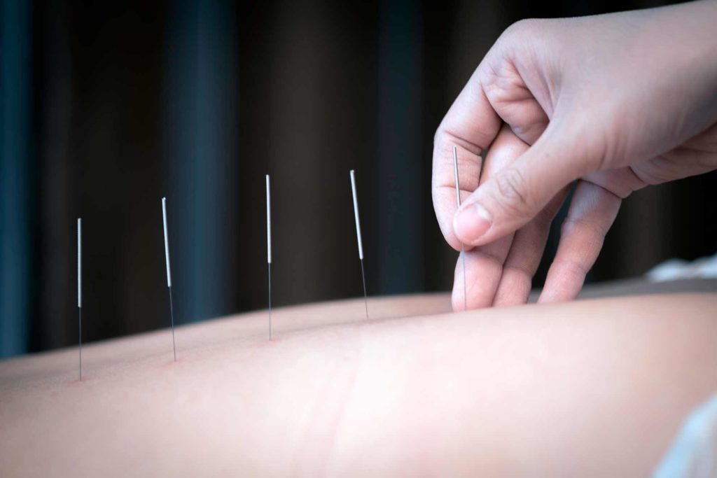 Acupuncture - Medwell